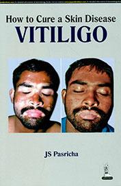 How To Cure A Skin Disease Vitiligo
