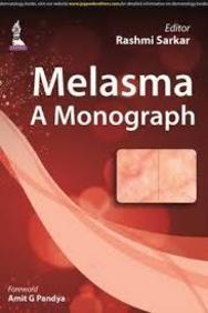 Melasma A Monograph