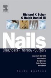 Nails Diagnosis Therapy Surgery