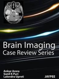 Brain Imaging (Case Review)