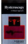 Hysteroscopy Clinical Approach