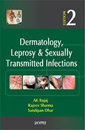 Dermatology Leprosy & Sexually Transmitted         Infections