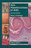 Skin Manifestations Of Aids