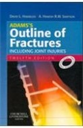 Outline Of Fractures Including Joint Injuries